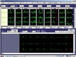 Rozinn Electronics, Holter for Windows1